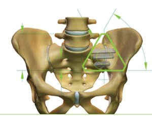 The sacrum is the keystone of the body providing strength and stability. Photo credit:SI-BONE Implant Sytems