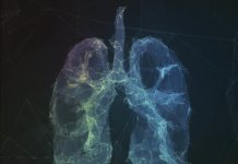 Lung Screening