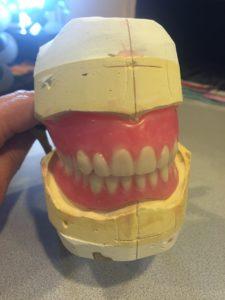 Lacey Denture Clinic Dentures