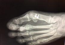 Washington Orthopaeidic Dujela Bunions Recurrent bunion