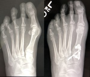 Washington Orthopaeidic Dujela Bunions before and after correction surgery