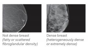 TRA Medical Imaging Breast Density