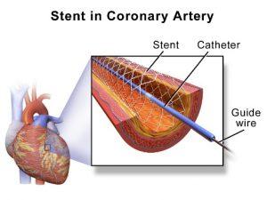 Dr Ankeney Kaiser Permanente stents 1