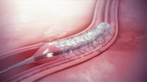 Dr Ankeney Kaiser Permanente stents