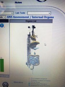 AM Medical ANS technology