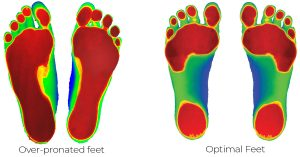 360 chiropractic Lacey Over pronated feet vs Optimal Feet