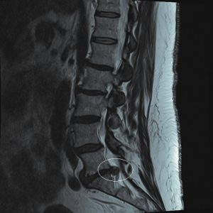Providence Back surgery xray